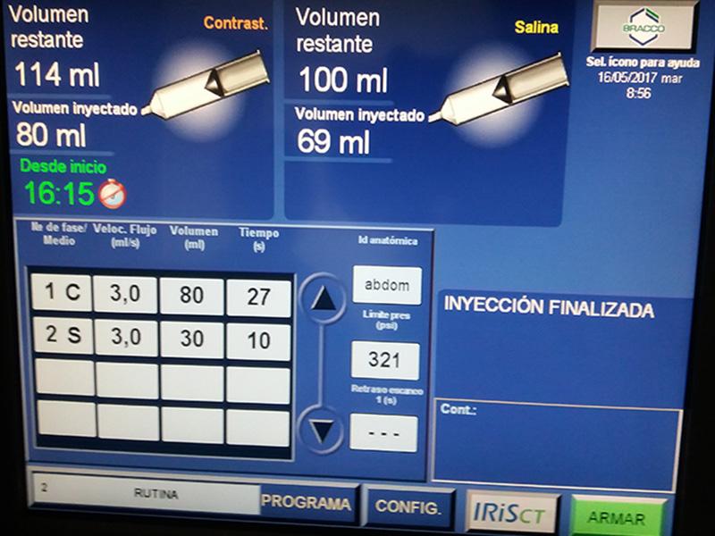 Monitor de la Bomba para Tomografías